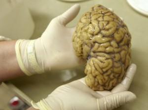 brain 4 6 13